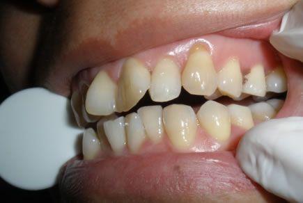 儿童牙齿矫正费用&