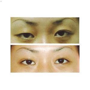 上一条:湘潭双眼皮下一条:湘潭韩式微创