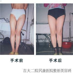 长春矫正腿型 长春腿型矫正