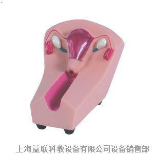 女性 宫内避孕器 及训练模型