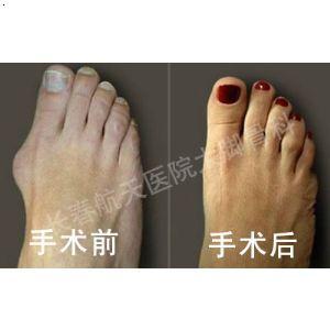 【大脚骨手术】厂家,价格,图片_长春航天医院大脚骨科