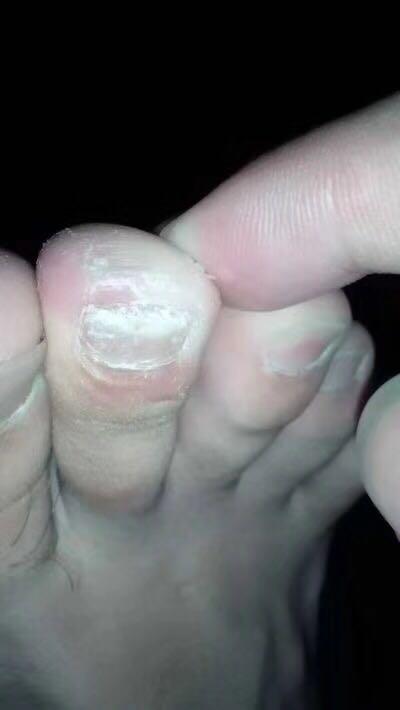 什么是灰指甲|什么是灰指甲|得了灰甲指怎么办